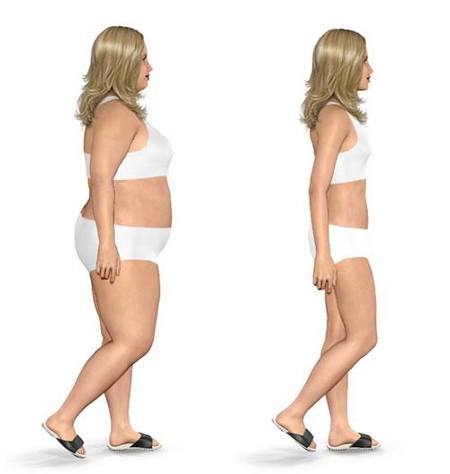 cirurgia bariatrica grafico antes e depois 1