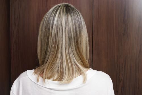 cabelo_pos_cirurgia_bariatrica